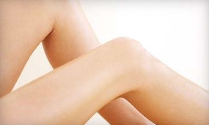 Vascular and Interventional Associates - Edgewood: $149 for One Sclerotherapy Spider-Vein Treatment at Vascular and Interventional Associates in Crestview Hills ($350 Value)