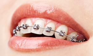 Dr. Rafih Khoury Dental Clinic: Single- or Double-Arch Metal or Ceramic Braces with Home Orthodontic Kit at Dr. Rafih Khoury Dental Clinic*