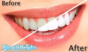 BleachBright RI Inc: Up to 62% Off Teeth Whitening at BleachBright RI Inc
