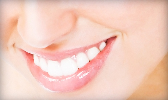 Optimal Med Spa - Northeast Dallas - White Rock: One or Three Beyond WhiteSpa Teeth-Whitening Treatments at Optimal Med Spa (Up to 65% Off)