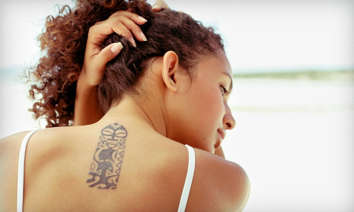 BodyAnew MedSpa - Houston: One, Three, or Six Laser Tattoo-Removal Sessions at BodyAnew MedSpa in Tomball (Up to 82% Off)