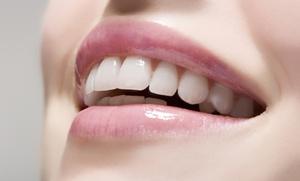1 o 2 sesiones de blanqueamiento dental LED y limpieza bucal desde 49,95 €