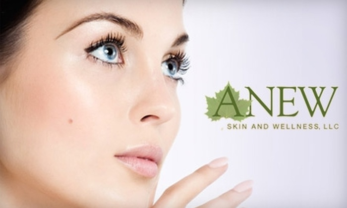 ANEW Skin and Wellness - Brookfield: $50 for Your Choice of a Level II Chemical Peel, Face and Neck Microdermabrasion, or Customized Facial from ANEW Skin and Wellness (Up to $120 Value)