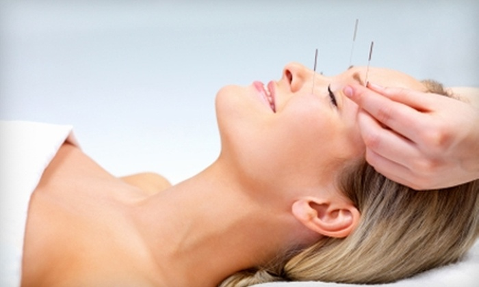 Transformational Acupuncture - Dupont Circle: $95 for Two Acupuncture Sessions at Transformational Acupuncture ($235 Value)