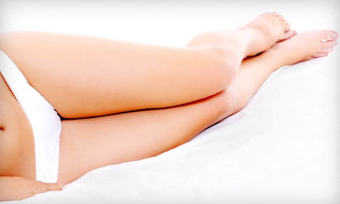 Fusion Medical Spa - Lancaster Coach Homes: One or Three Spider-Vein Treatments at Fusion Medical Spa in Naperville