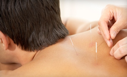 Medical Exam, Assessment and Acupuncture Treatment (a $90 value) - Arlington Acupuncture Clinic in Columbus
