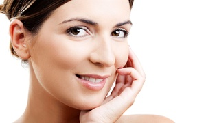 Facials & More Med Spa: One, Three, or Six Glycolic Chemical Peels at Facials & More Med Spa (Up to 51% Off)