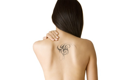 Laser Tattoo Removal Sessions