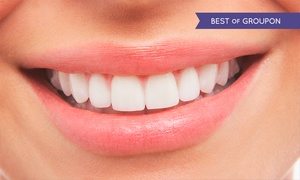 Knutsford Road Dental: Laser or Zoom Teeth Whitening at Knutsford Road Dental (Up to 72% Off)