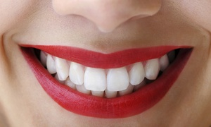 Ibtisama: Up to Three Cosmetic Teeth Whitening Sessions at Ibtisama Lounges (Up to 50% Off)