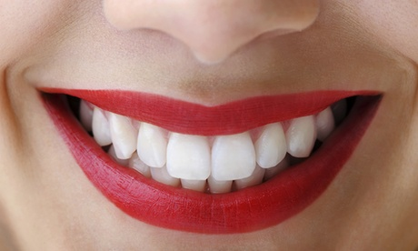 Férula de descarga semirrígida o rígida con limpieza bucal,revisión y fluorización desde 69,90 € en Dental Abtao