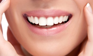 DaVinci by Coree: $95 for a 60-Minute In-Office Laser Teeth-Whitening Treatment at DaVinci by Coree ($317 Value)
