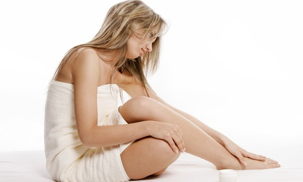 $99 for Two Cosmetic Spider-Vein Treatments at Vein Associates of Texas ($600 Value)