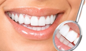 Landmark Dental Studio: $157 for an In-Office Laser Teeth-Whitening Treatment at Landmark Dental Studio ($450 Value)