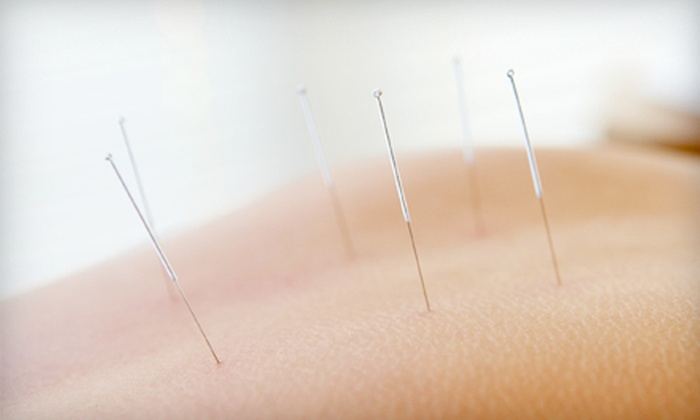Art of Acupuncture - Williston Park: $39 for an Acupuncture Treatment with Initial Consultation at Art of Acupuncture (Up to $440 Value)