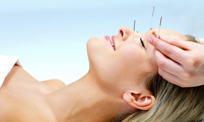 Elite Med Spa - Gateway East: $39 for an Acupuncture Treatment at Elite Med Spa ($100 Value)