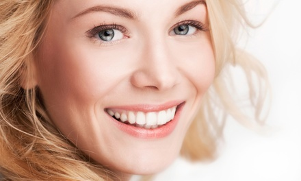 $59 for a Level 1 Chemical Peel with a Microdermabrasion Treatment at Beauty Oasis Rx (Up to 55% Off)