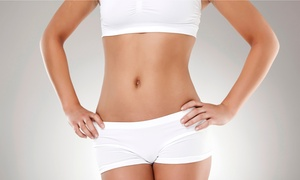 Trim Laser: Two, Four, or Six Trim Trio Body-Contouring Packages at Trim Laser (Up to 76% Off)