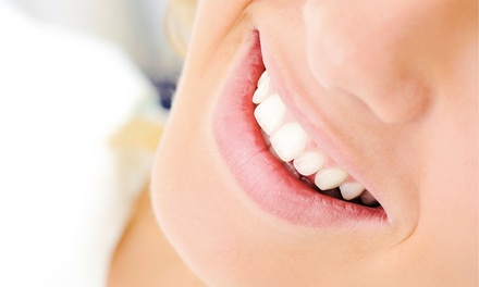 $39 for a Dental Exam, Cleaning, and X-rays at Willow Family Dentistry ($250 Value)