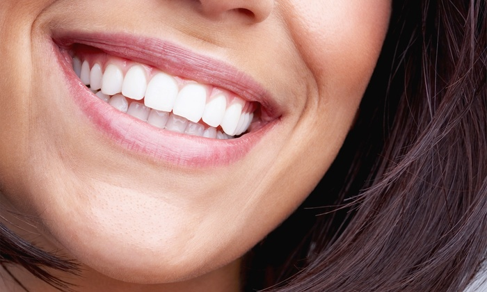 Iconic Smiles Teeth Whitening - Hillside / Dallas: Deluxe Teeth Whitening or Platinum Teeth Whitening with Aromatherapy at Iconic Smiles Teeth Whitening (81% Off)