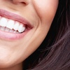 Scale, Polish and Teeth Whitening