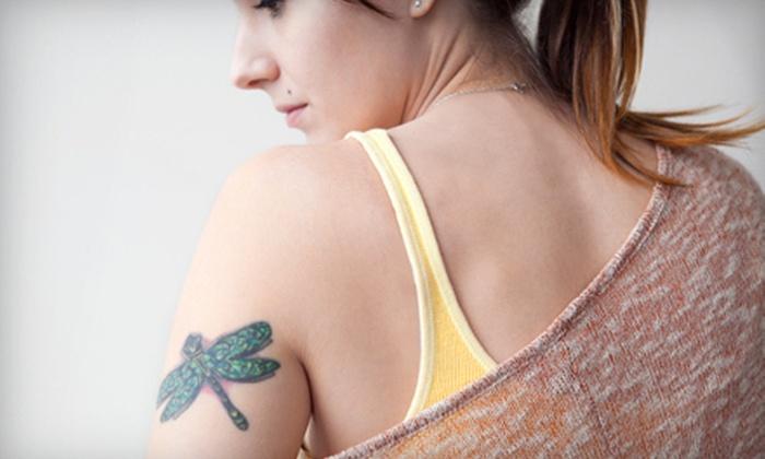 Highbridge Tattoo & Laser Tattoo Removal - St. Paul: Laser Tattoo Removal for Area Up to 4, 6, or 8 Square Inches at Highbridge Tattoo & Laser Tattoo Removal (Up to 61% Off)