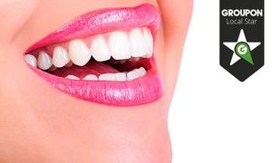 Clínica Futuredent: Limpieza bucal con fluorización por 9,95 € y con 1 o 2 sesiones de blanqueamiento led desde 59,95 € en 10 centros