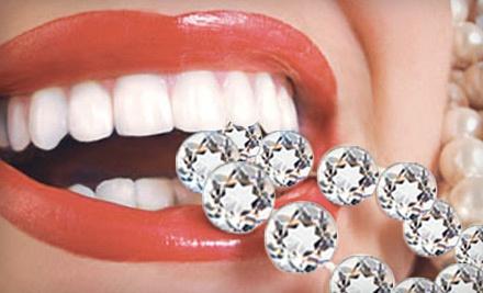 Icing Teeth Whitening - Icing Teeth Whitening in