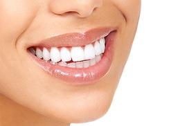 Dental Studios: £69 for One-Hour Pola Power Teeth Whitening at Dental Studios (79% Off)
