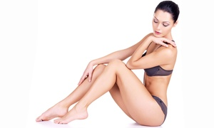 North Beach Vascular & Aesthetics: Laser Hair Removal for a Small, Medium, or Large Area at North Beach Vascular & Aesthetics (Up to 86% Off)