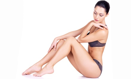 Laser Hair Removal for a Small, Medium, or Large Area at North Beach Vascular & Aesthetics (Up to 86% Off)
