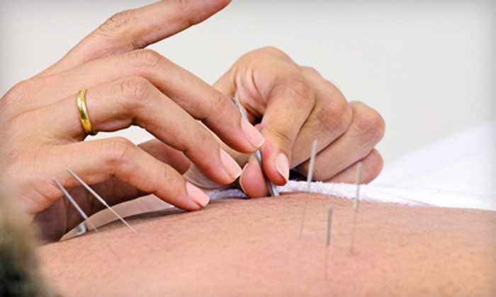 Axis Natural Medicine - Fort Myers: One or Three Acupuncture Sessions at Axis Natural Medicine (Up to 73% Off)