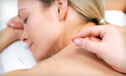 Consultation and 1 Acupuncture Session - Irvine Acupuncture in Irvine