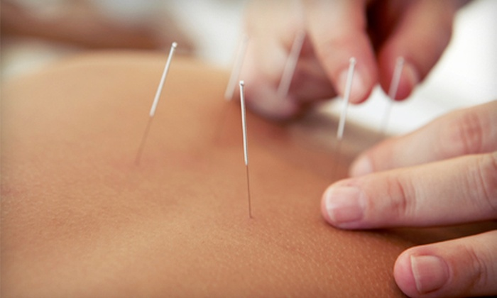 Pinnacle Acupuncture & Chinese Herbal Medicine - Central Business District: $39 for Two 60-Minute Acupuncture Sessions at 	 Pinnacle Acupuncture & Chinese Herbal Medicine ($190 Value)