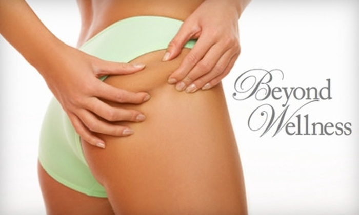 Beyond Wellness - Hoover: $85 for one Veinwave Spider Vein Treatment at Beyond Wellness