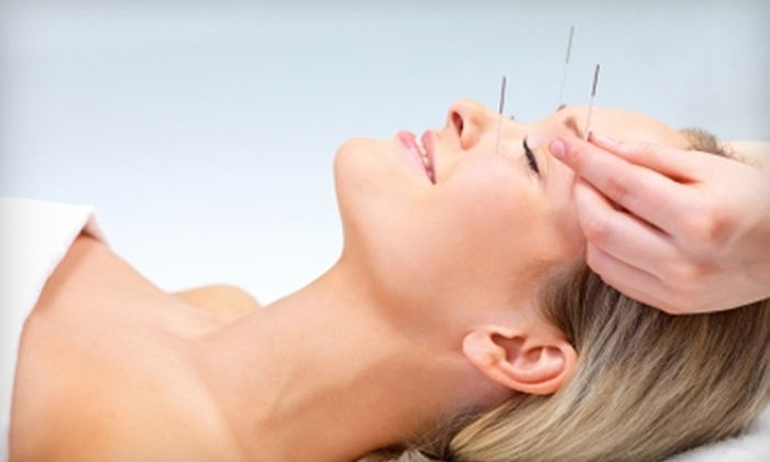 Cloud 9 Acupuncture Community Clinic - Bedford: Acupuncture Treatment at Cloud 9 Acupuncture Community Clinic in Temperance. Choose Between Two Options.