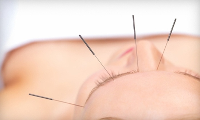 City Acupuncture - Multiple Locations: $15 for One Acupuncture Session at City Acupuncture (Up to $50 Value)