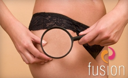 Fusion Medical Spa: 5 Lipomassage Treatments - Fusion Medical Spa in Naperville