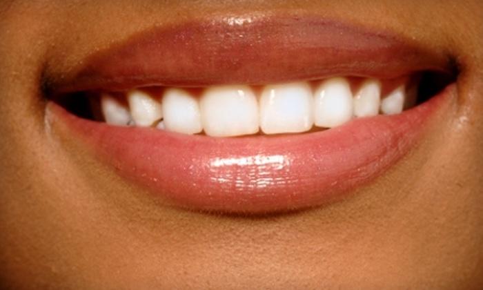 Shore SmileLabs - Chester: $49 for Teeth Whitening at Shore SmileLabs in Stevensville ($99 Value)