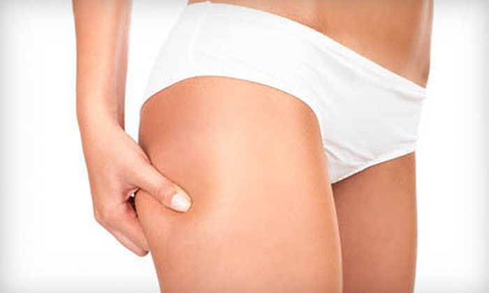 The Body Sculpt Xpress - Multiple Locations: One or Two Non-invasive Fat Removal Ultrasonic-Cavitation Sessions from The Body Sculpt Xpress (78% Off)