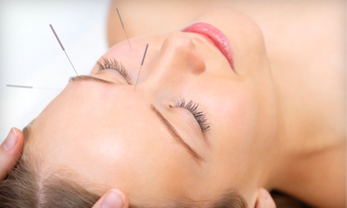 West End Chiropractic & Rehabilitation Center - DeBaliviere Place: $99 for Two Cosmetic Facial-Acupuncture Sessions at West End Chiropractic & Rehabilitation Center ($200 Value)