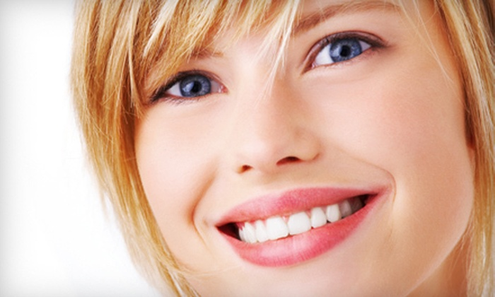 SmileBrite - Charleston: In-Office Teeth Whitening or Mobile Whitening Party for Up to Four from SmileBrite (Up to 77% Off)