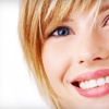Up to 77% Off Teeth Whitening