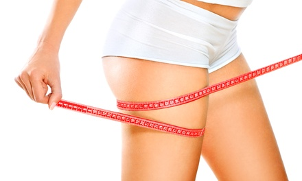 Three or Four VelaShape Treatments at Newport Plastic (Up to 51% Off)