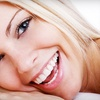 54% Off Teeth Whitening in Rio Rancho