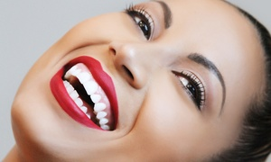 Light Bright Smile: 40-Minute or 60-Minute In-Office Whitening Treatments from Light Bright Smile (Up to 61% Off)