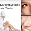 Up to 75% Off Laser Hair Removal