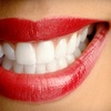 Up to 75% Off Dental Exam or Orthodontic Braces