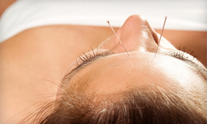 Bennett Acupuncture - Multiple Locations: Two Acupuncture Treatments or Five Acupuncture Face-Lift Treatments at Bennett Acupuncture in Huntington Beach or Fountain Valley (73% Off)