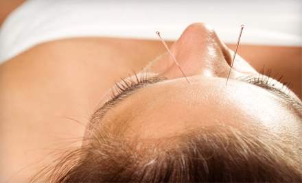 2 Acupuncture Treatments with Consultation (a $240 value) - Bennett Acupuncture in Huntington Beach